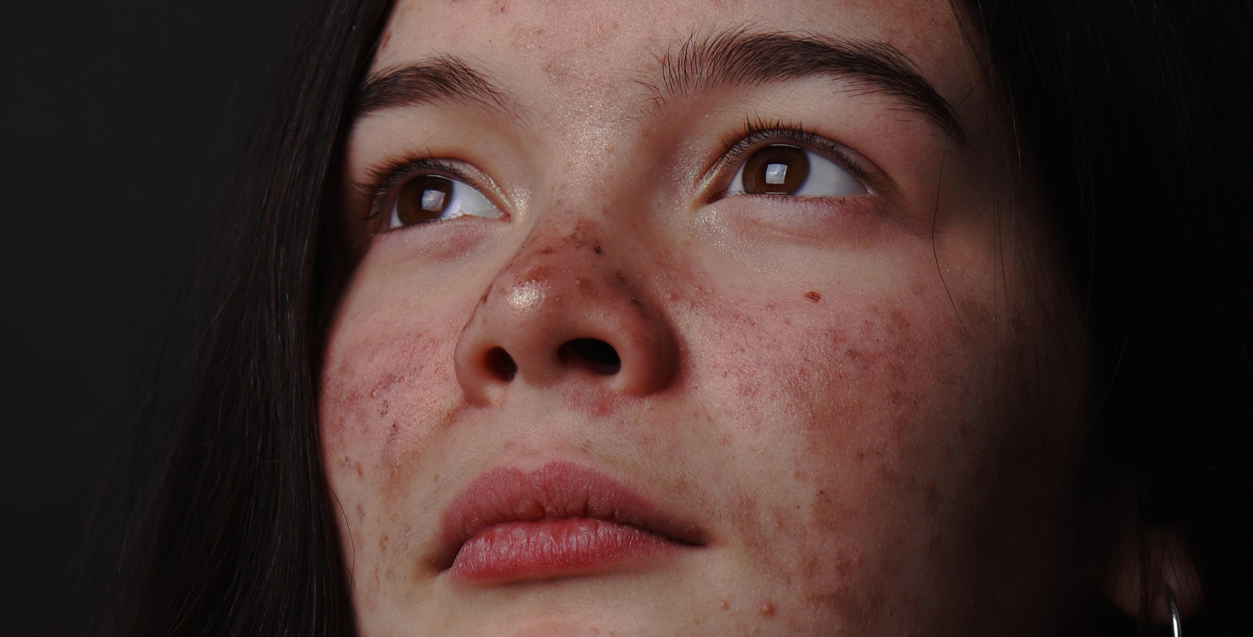 El acné: tipos, tratamientos e ingredientes que lo combaten